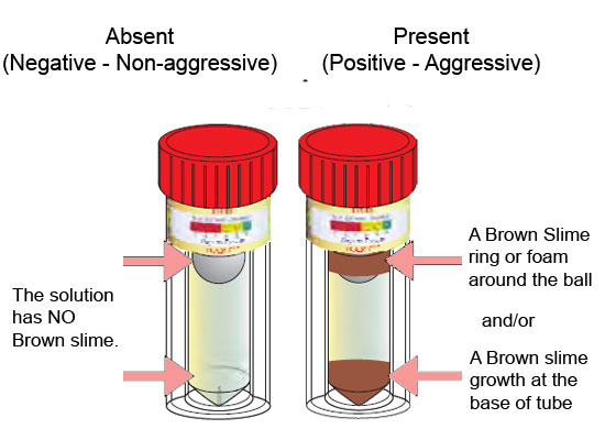 Iron Related bacteria test